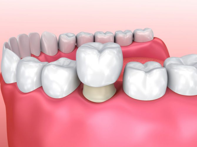 dental crowns dentist brooklyn ny