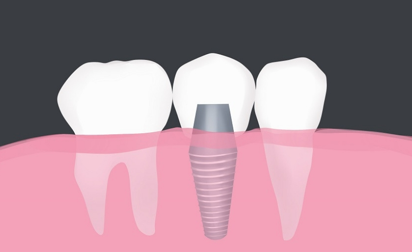 dental implant restorations brooklyn ny
