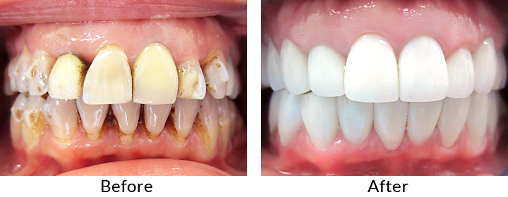 full-mouth-reconstruction-brooklyn ny
