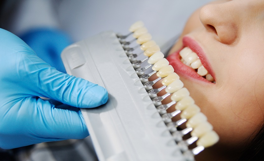 brooklyn cosmetic dentist dental crowns