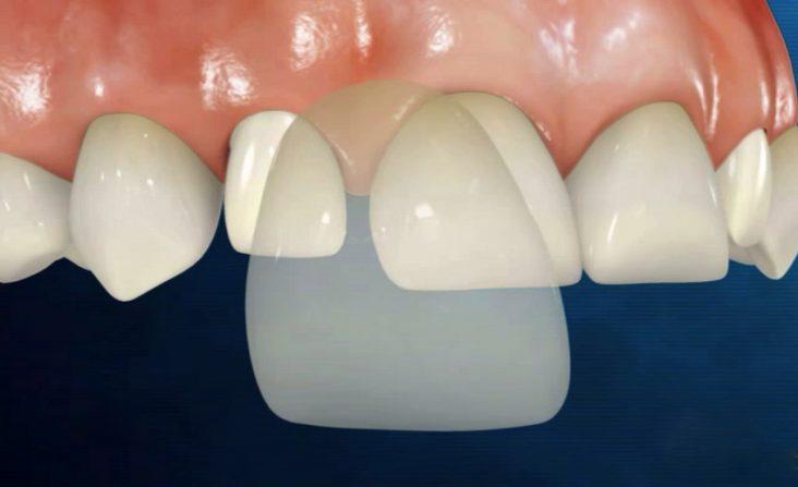 cosmetic dental veneers brooklyn ny