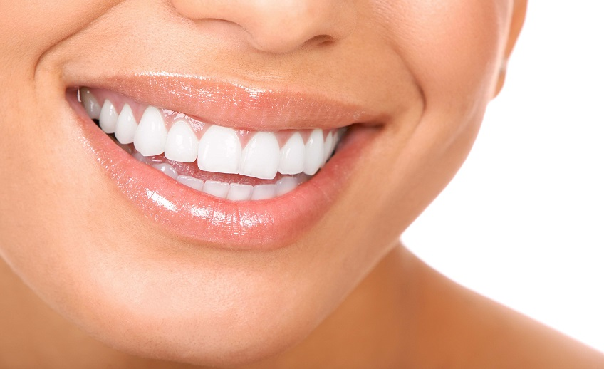 dental tooth bonding cosmetic dentist brooklyn