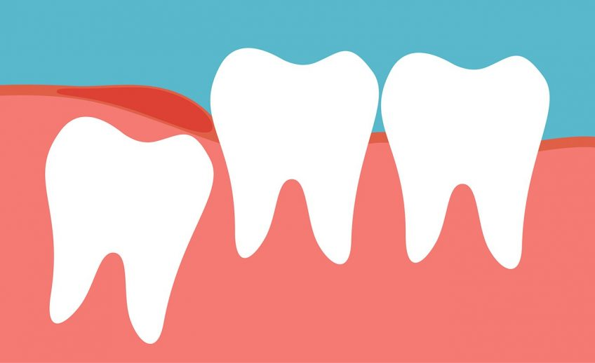 wisdom teeth and molar impaction extraction causes signs symtoms brooklyn new york