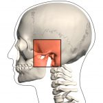emportomandibular Joint Disorder